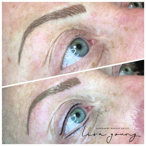 Permanent Eye Makeup before and after images case study 2
