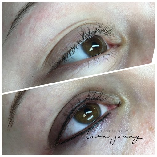 Permanent Eye Makeup before and after images case study 1