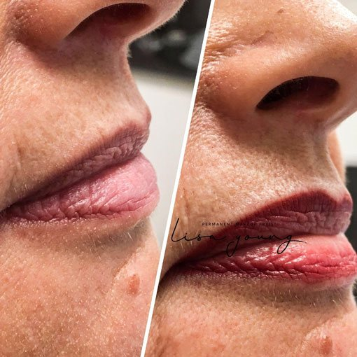 Permanent Lip Makeup before and after images case study 1